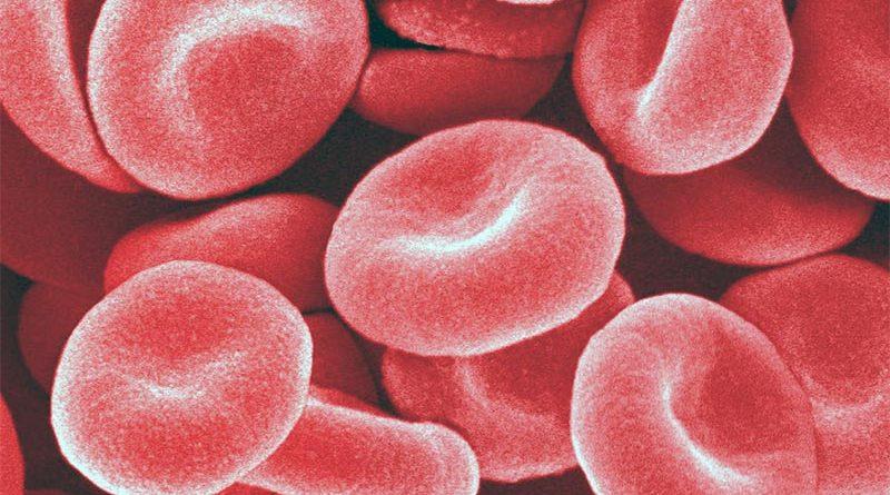Glicemia ed emoglobina glicata